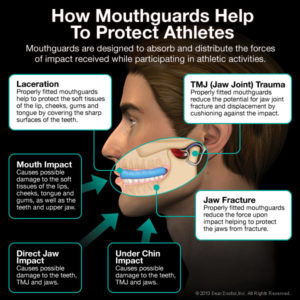 athletic-mouthguards