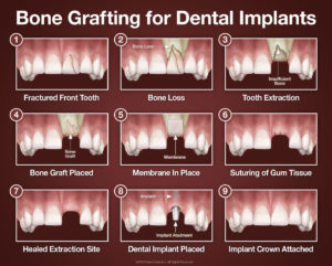 bone-grafting-for-dental-implants-large
