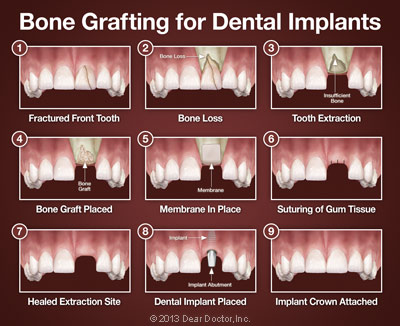 bone-grafting-for-dental-implants
