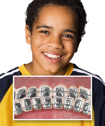 boy-with-lingual-braces