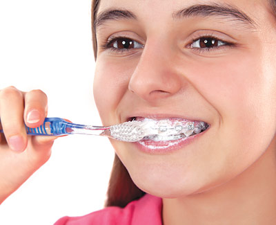 brushing-with-braces