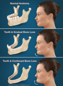 consequences-of-tooth-loss