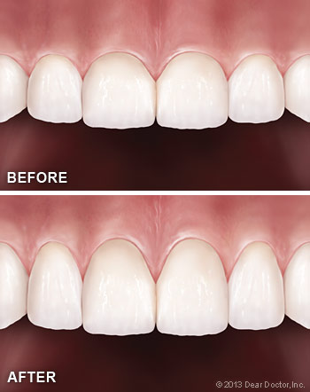 cosmetic-gum-surgery