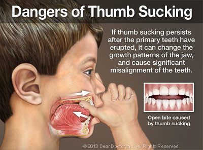 dangers-of-thumb-sucking-thumb