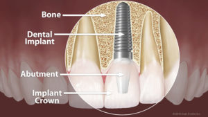 dental-implant-anatomy-large