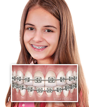 girl-with-metal-braces