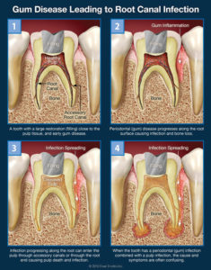 gum-disease-leading-to-root-canal-infection