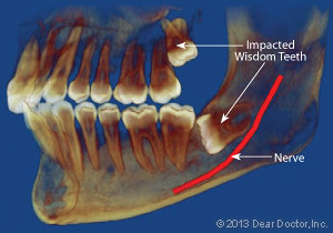impacted-wisdom-tooth-xray