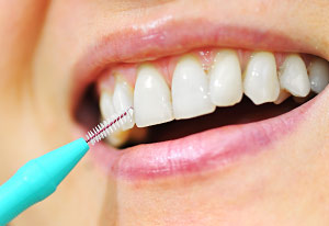 interdental-cleaning