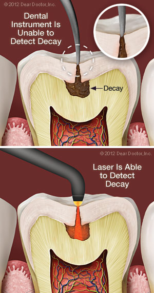 laser-decay-diagnosis