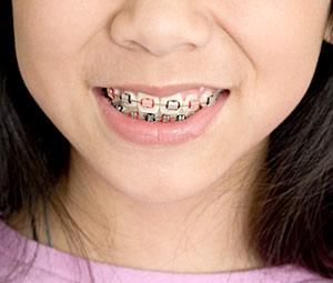 orthodontic-care