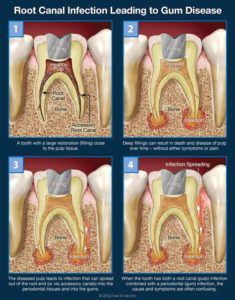 root-canal-infection-leading-to-gum-disease