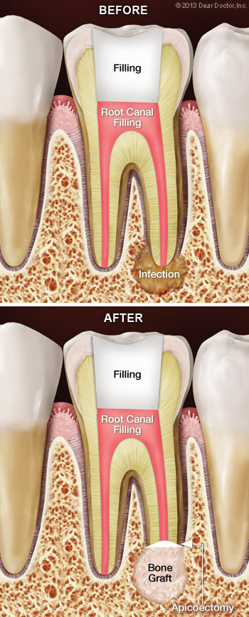root-canal-surgery-apicoectomy