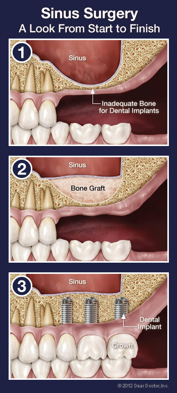 sinus-surgery-step-by-step