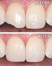 tooth-bonding-before-after
