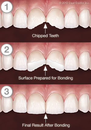 tooth-bonding-series