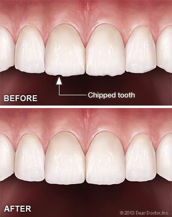 how to fix a slipped veener tooth yourself