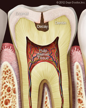 tooth-decay2